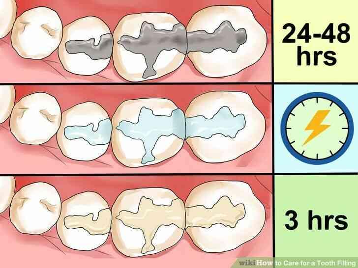 Imagen titulada de Atención para un Empaste Dental Paso 1