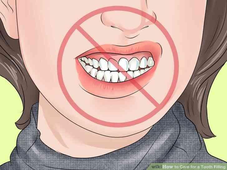 Imagen titulada de Atención para un Empaste Dental Paso 13
